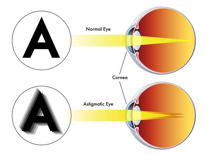 Laser Eye Surgery for Astigmatism