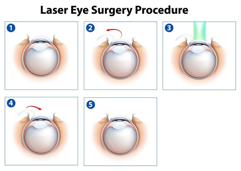LASIK vs LASEK vs PRK | Laser Eye Surgery Hub