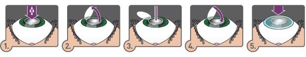 lasek eye surgery