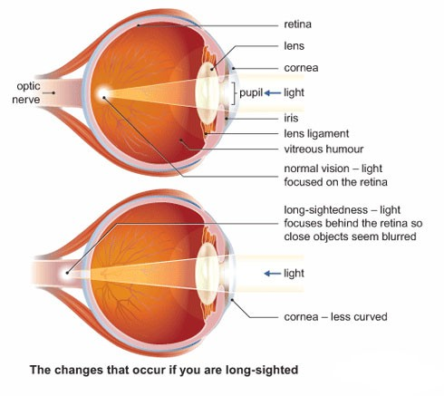 long sightedness laser eye surgery