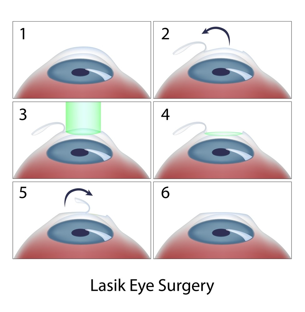 Lasik Vs Lasek Vs Prk  Laser Eye Surgery Hub. Lance Greer State Farm Customize Your Own Pen. Katsur Dental Greensburg Anti Depressant Drug. Mobile Development Degree Clogged Sewer Main. Free Private Video Sharing Sites. Netflow Analyzer Cisco Asa Music Schools Usa. Different Types Of E Commerce. Arizona Treatment Center Va Community College. Survey Management Software Maine Art College