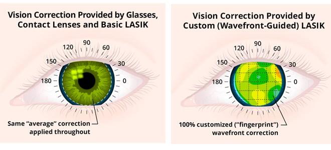 wavefront-vs-standard-lasik
