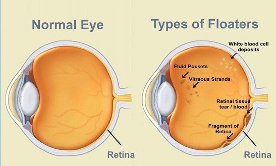 A Comprehensive Guide to Floaters | Laser Eye Surgery Hub