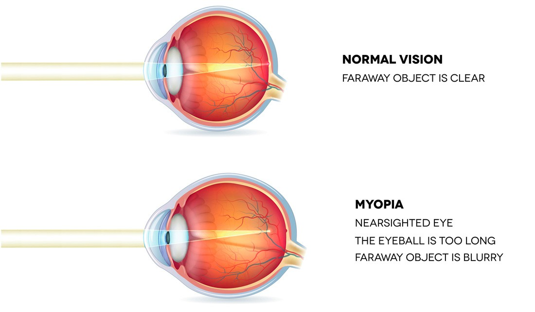 short sightedness hogy a fenibut hogyan befolyásolja a látást