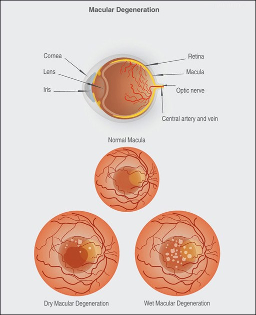A Comprehensive Guide To Age Related Macular Degeneration