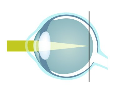 Common Questions About Laser Eye Surgery - Treatments