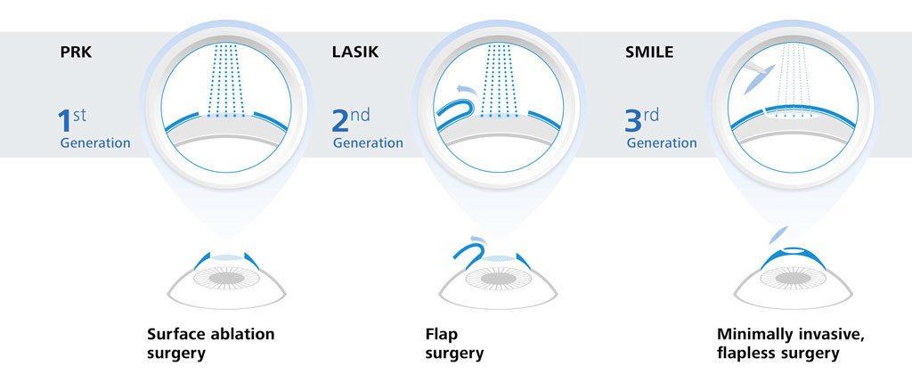 laser eye surgery prices