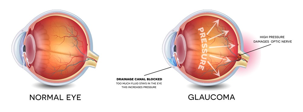 Glaucoma - Overview of Information