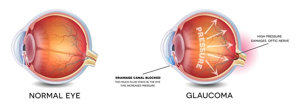 Glaucoma glaucoma