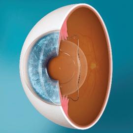 Phakic Intraocular Lens Surgery EVO ICL 1