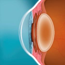 Phakic Intraocular Lens Surgery EVO ICL 2